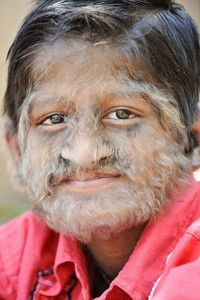 werewolf syndrome